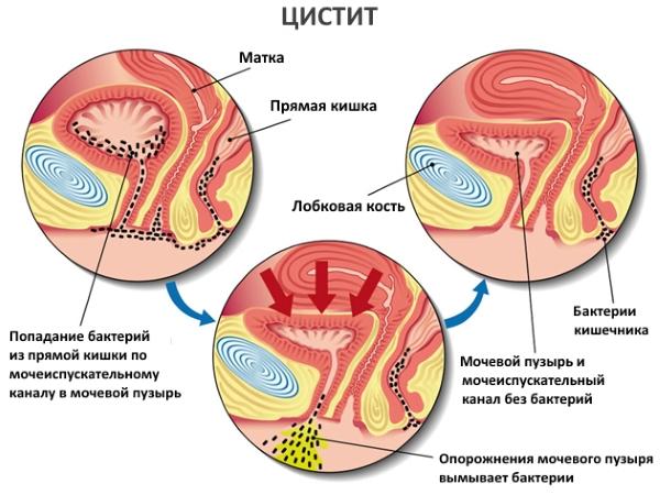 Как лечить воспаленный мочевой пузырь