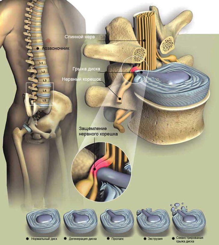Спинальный стеноз поясничного отдела из-за защемления нервного корешка грыжей диска