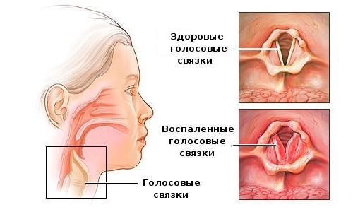 Стенозирующий ларингит