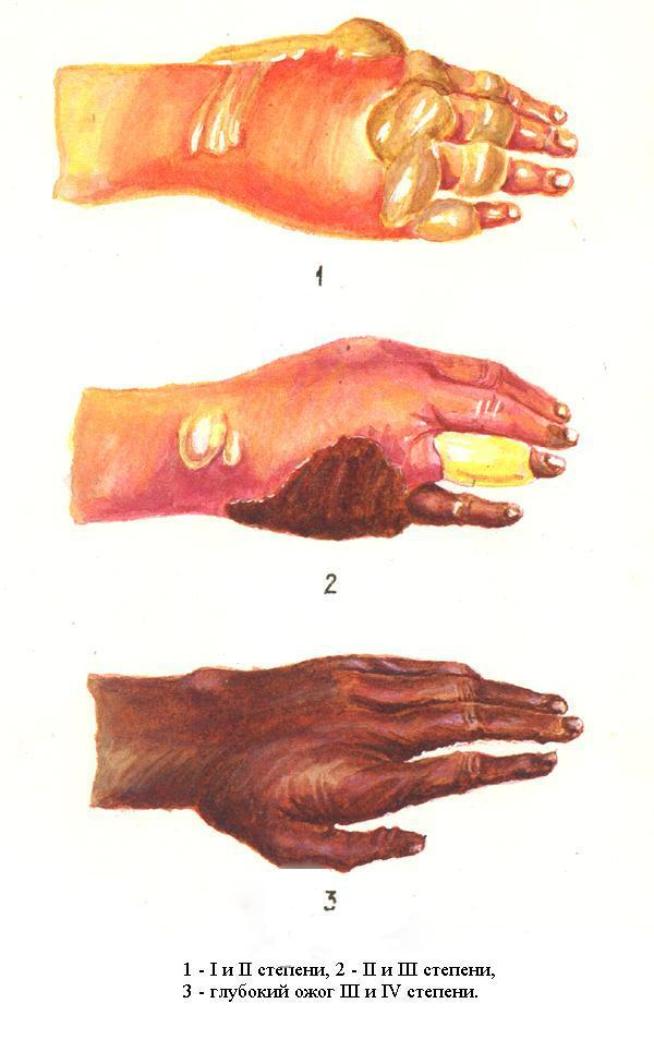 Степени ожогов пальцев