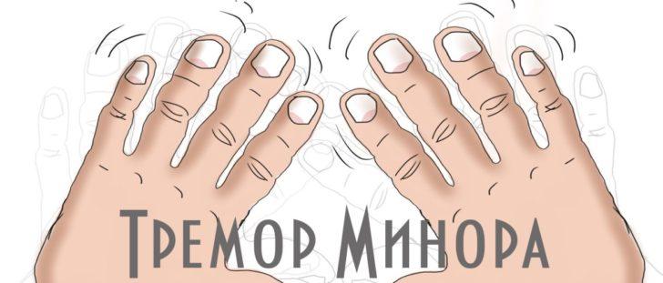 Тремор Минора