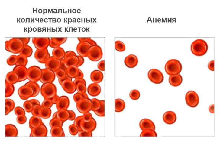 Схематичное изображение микроскопии мазка крови