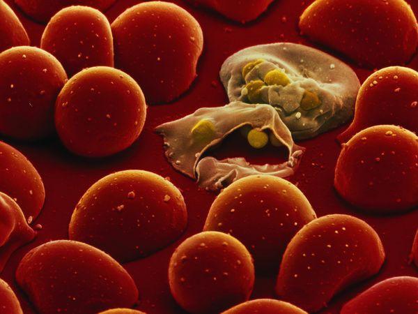 Эритроциты, поражённые малярией