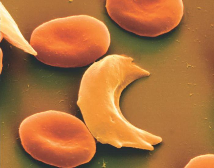 Эритроциты при серповидно-клеточной анемии