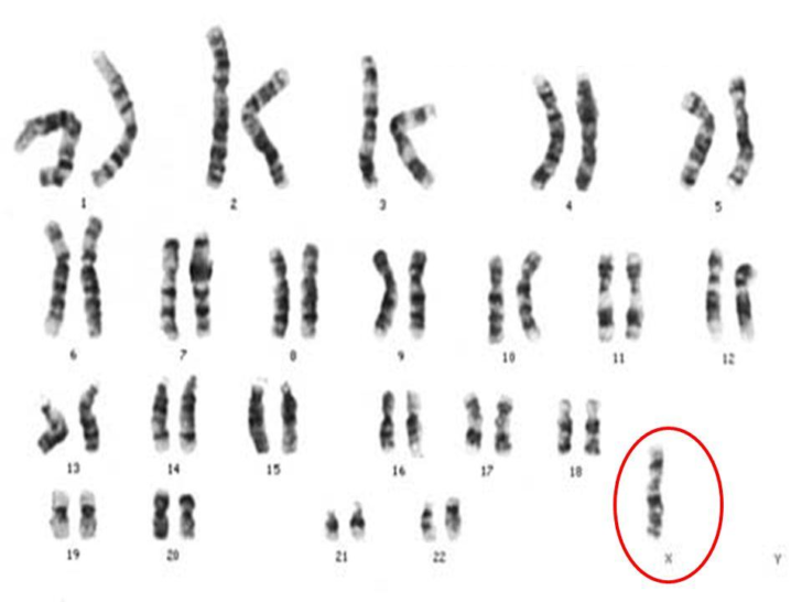 Хромосомный набор: моносомия по Х хромосоме