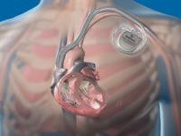 Кардиостимулятор в организме человека