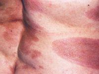 Пятна на коже при крупнобляшечном парапсориазе