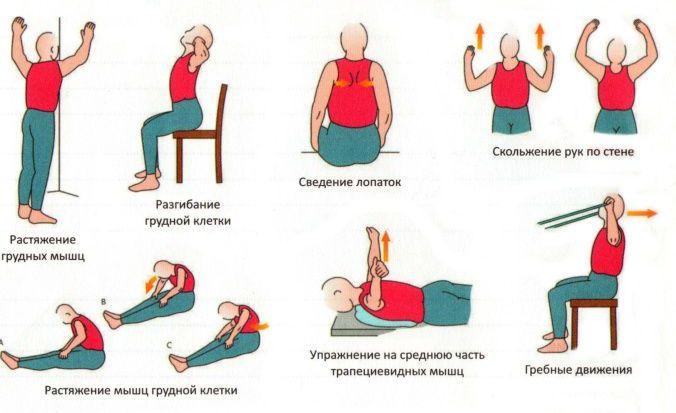 ЛФК для грудного отдела позвоночника