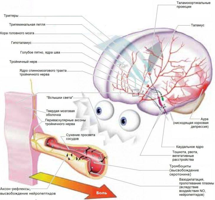 Механизм возникновения мигрени