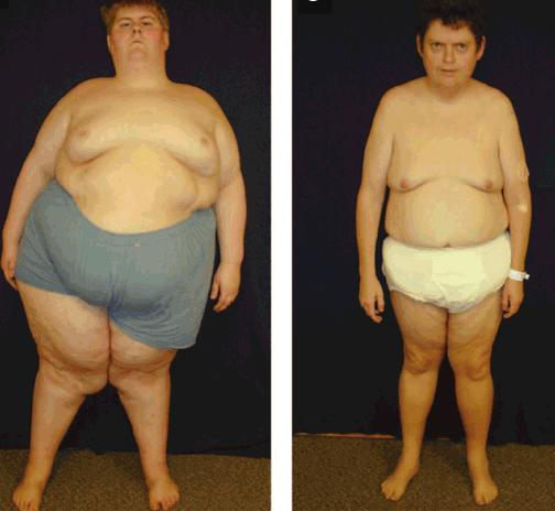 Ожирение у больных синдромом Прадера-Вилли
