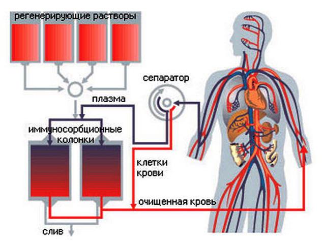 Плазмеферез (схема процесса)
