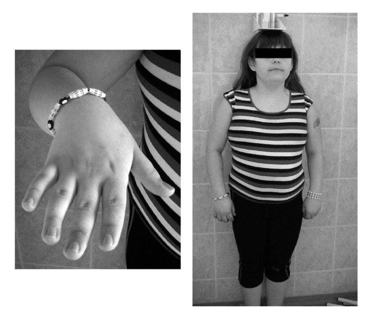 Ребенок с синдромом Тёрнера-Шерешевского возраста 14–15 лет