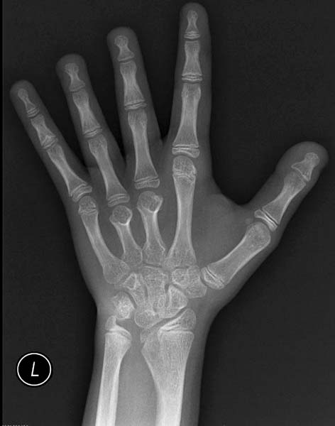 Рентгеновское изображение кисти больного