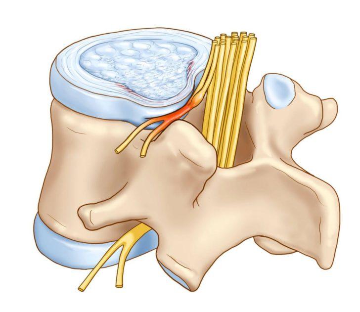 Сдавление нервного корешка межпозвоночной грыжей
