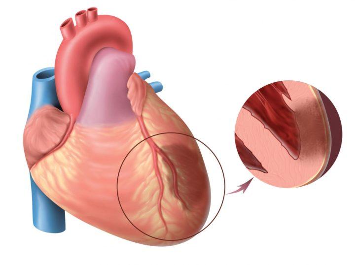 Сердце при инфаркте миокарда