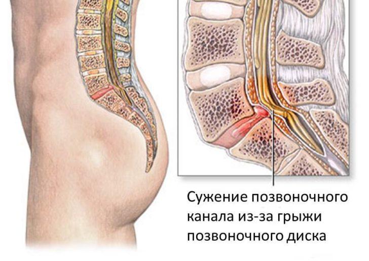 Защемление спинного мозга в позвоночном канале на поясничном уровне
