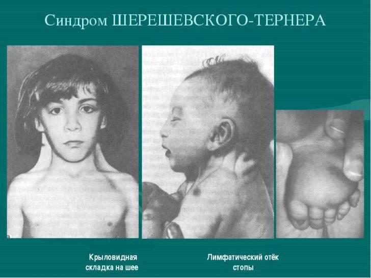 Синдром Шерешевского — Тёрнера