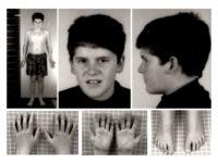 Внешние признаки больного с синдромом Прадера-Вилли