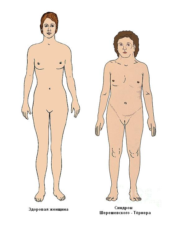 Внешний вид здоровой женщины и пациентки с синдромом Тёрнера