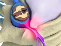 Защемение корешка нерва межпозвоночной грыжей