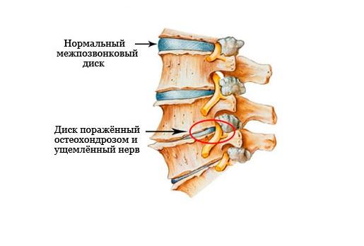 Защемление нервов на уровне шейного отдела