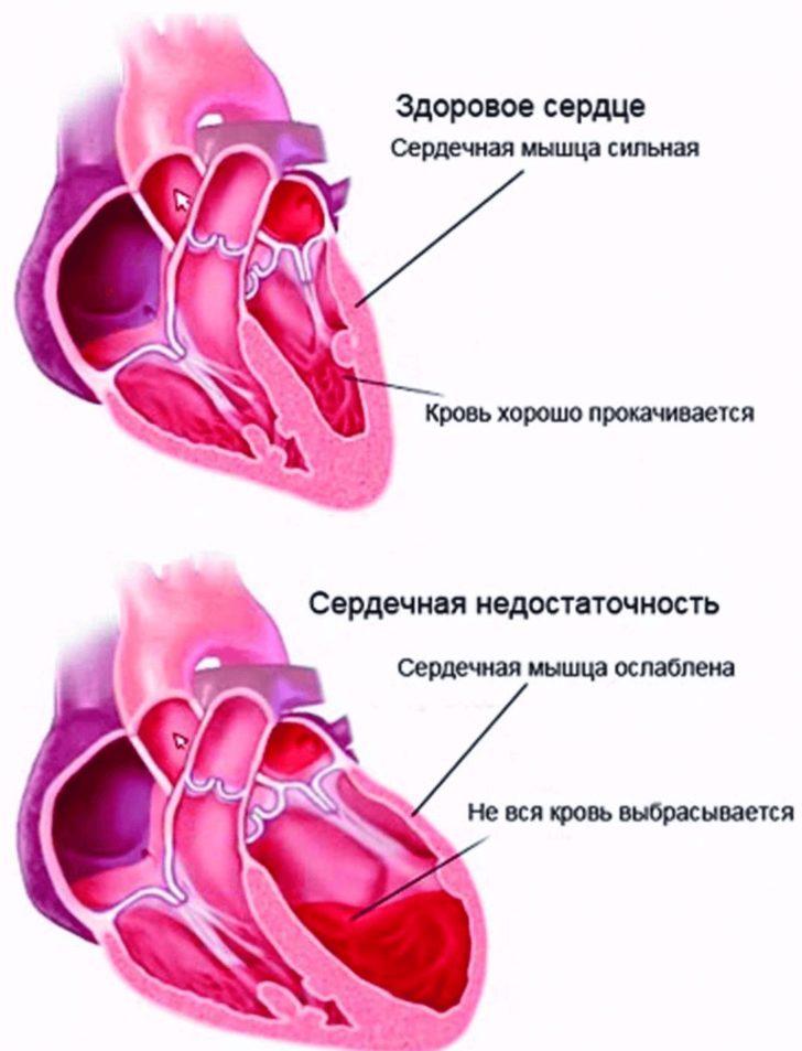 Здоровое сердце и сердце, вызывающее хроническую недостаточность кровообращения