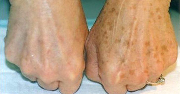 Пигментные пятна на коже рук