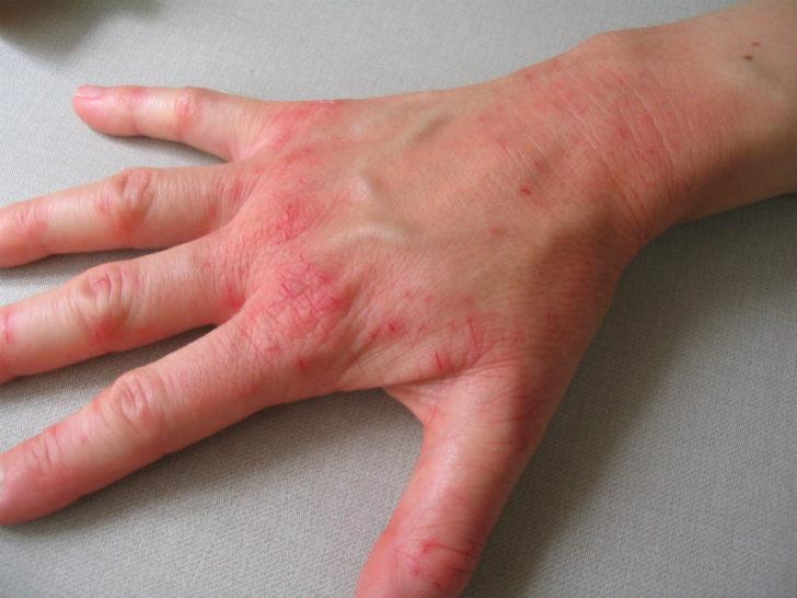 Воспалённая кожа кисти руки