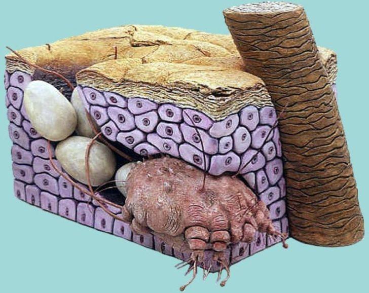Модель чесоточного хода с клещом и отложенными им яйцами