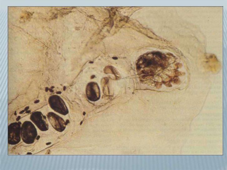 Чесоточный ход под микроскопом