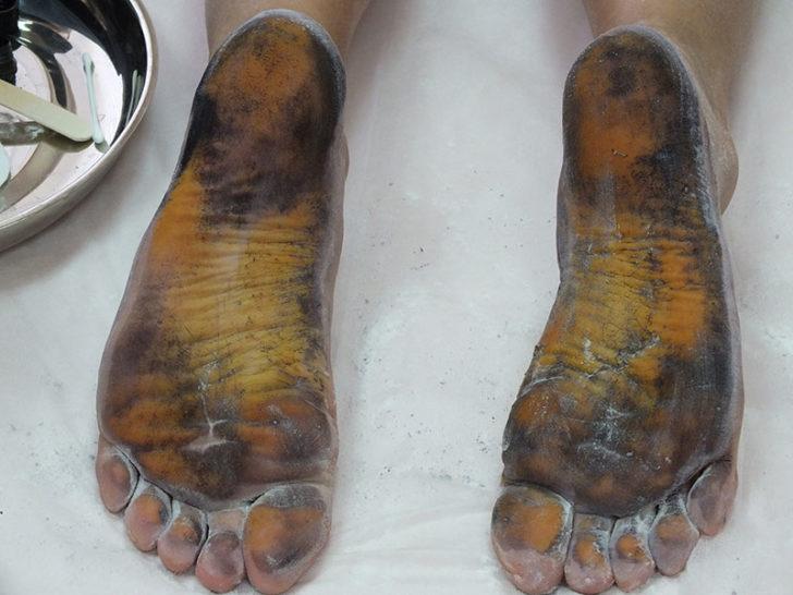 Проба Минора на ступнях