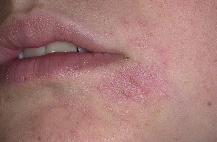Микробная экзема на лице