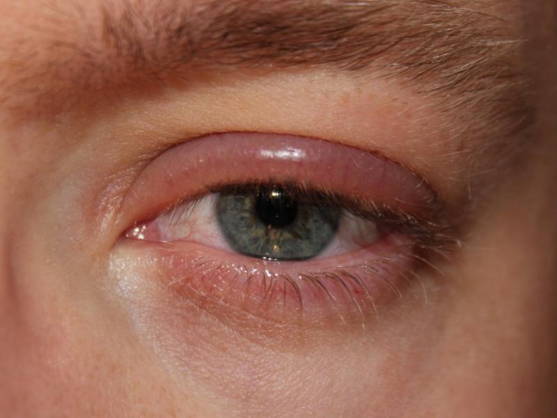 Эндокринная офтальмопатия: угроза для зрения