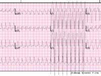 Электрокардиограмма при аритмии