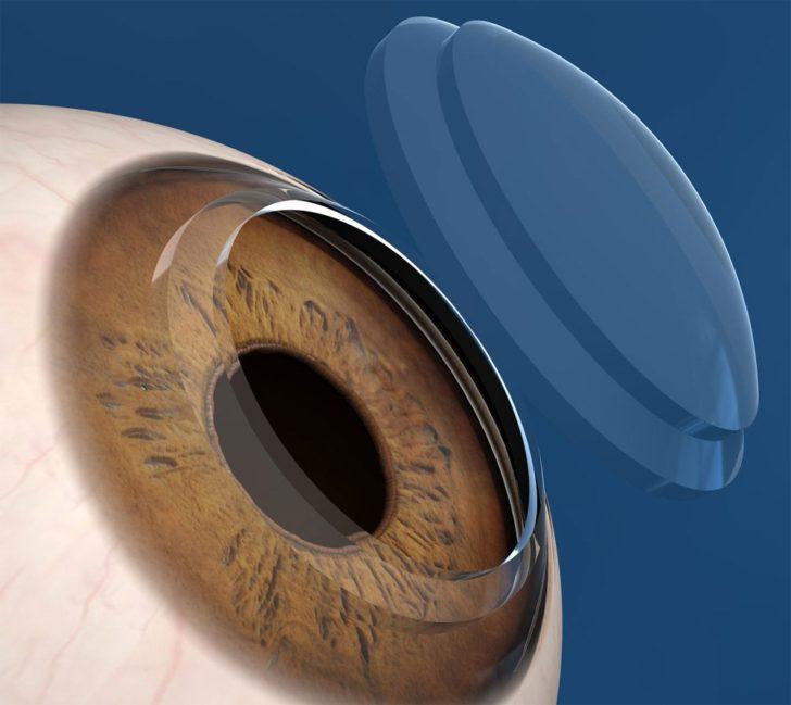Глаз и имплант роговицы