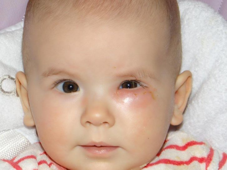 Припухлость левого глаза у грудничка