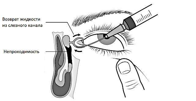 Промывание носослёзного канала (схема)