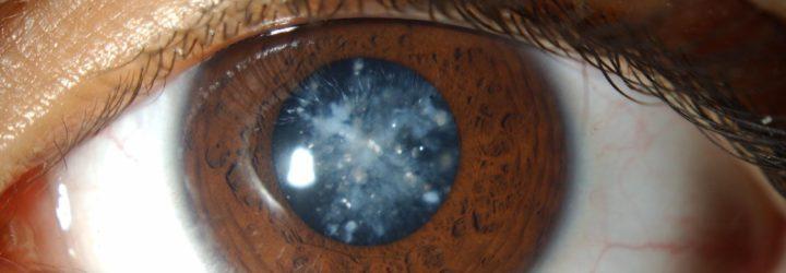 ретиноскопия