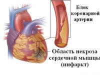 Схема развития инфаркта миокарда