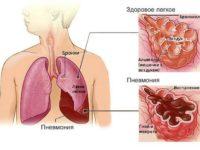 Схема развития пневмонии