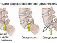Спондилолиз и спондилолистез