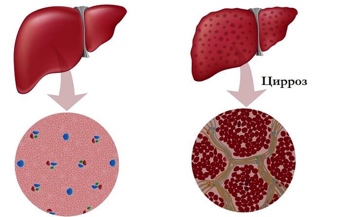 Структура здоровой печени и органа, поражённого циррозом