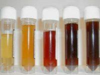 Варианты цвета мочи при гломерулонефрите