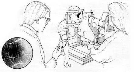 Рисунок с изображением проведения ангиографии