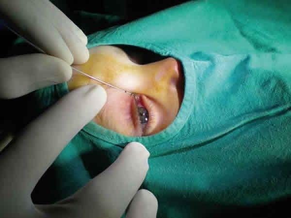 Зондирование носослёзного канала у ребёнка