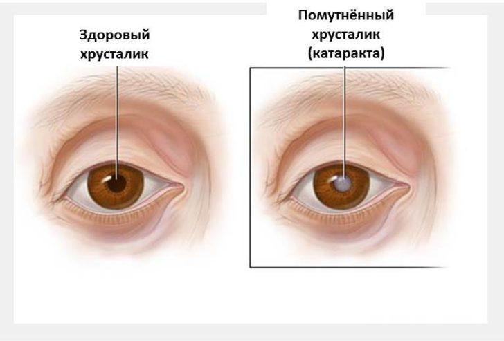Здоровый хрусталик и хрусталик с катарактой
