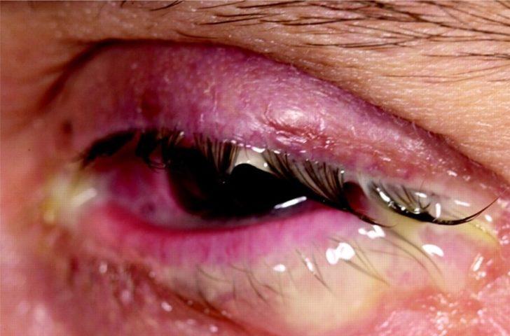 Глаз, поражённый бленнореей