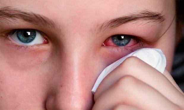 Человек держит салфетку у больного глаза