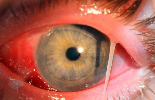 Гиперемированный глаз с гнойными выделениями