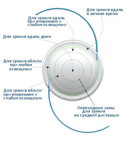 Мультифокальная линза